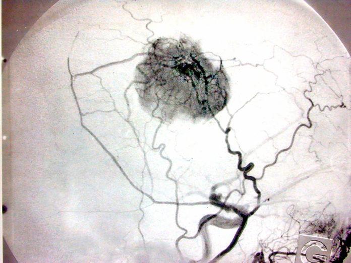 Angiografia - na czym polega to badanie?